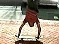 JimmyMarchandSkateboardingonCrutches