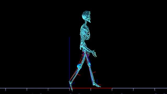 ElephantManAutopsySkeletonScan